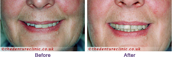 Equipose System Sutton - Partial Dentures