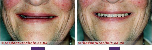 High Impact Acrylic Dentures Sutton - Dentures in a Day
