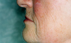 Denture and Implant Dentist Sutton - After Image 10