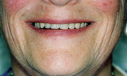 Denture and Implant Dentist Sutton - After image 2