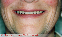 High Impact Acrylic Dentures Sutton - After
