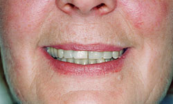 Denture and Implant Dentist Sutton - After Image 3