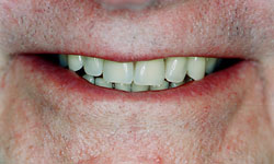 Denture and Implant Dentist Sutton - After Image 4