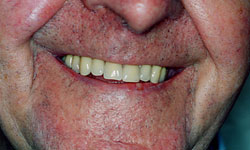 Denture and Implant Dentist Sutton - After Image 5