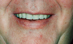 Denture and Implant Dentist Sutton - After Image 6