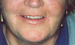 Denture and Implant Dentist Sutton - After Image 8