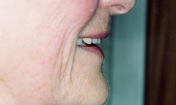 Denture and Implant Dentist Sutton - After Image 9