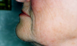 Denture and Implant Dentist Sutton - Before Image 10