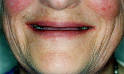 Denture and Implant Dentist Sutton - Before Image 2