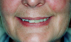 Denture and Implant Dentist Sutton - Before image 3