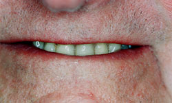 Denture and Implant Dentist Sutton - Before Image 4