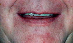 Denture and Implant Dentist Sutton - Before Image 6