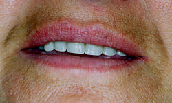 Denture and Implant Dentist Sutton - Before Image 7