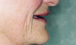 Denture and Implant Dentist Sutton - Before Image 9