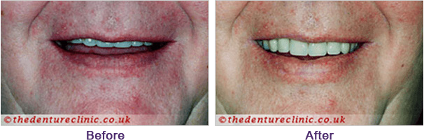 Denture Pictures Carshalton Beeches Surrey - Before After 01