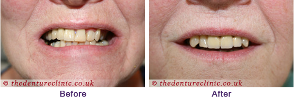 Denture Pictures Carshalton Beeches Surrey - Before After 11