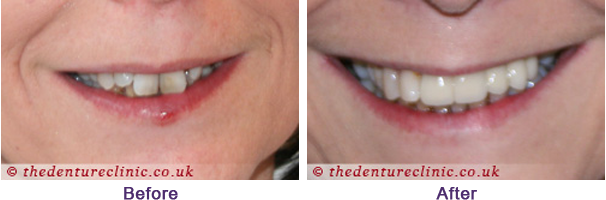 Denture Pictures Carshalton Beeches Surrey - Before After 12