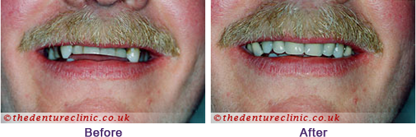 Denture Pictures Carshalton Beeches Surrey - Before After 05