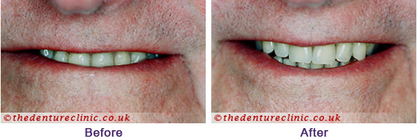 Denture Pictures Carshalton Beeches Surrey - Before After 06
