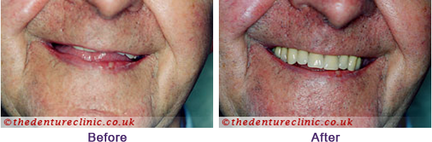 Denture Pictures Carshalton Beeches Surrey - Before After 07