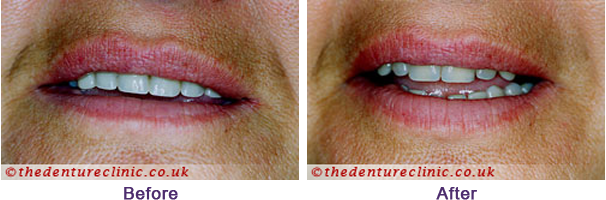 Denture Pictures Carshalton Beeches Surrey - Before After 08