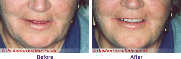 Denture Pictures Carshalton Beeches Surrey - Before After 09