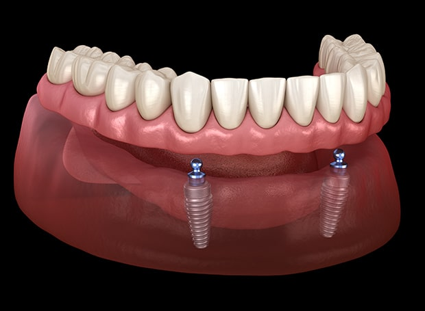 Implant Retained Dentures To Held Anchor In Dentures