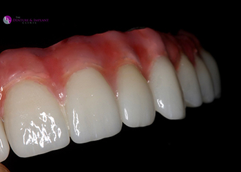 Same Day Teeth Images 003 of The Denture & Implant Clinic