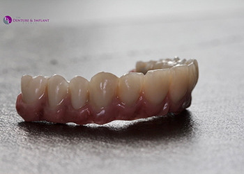 Same Day Teeth Images 006 of The Denture & Implant Clinic