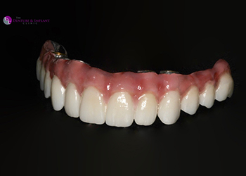 Same Day Teeth Images 008 of The Denture & Implant Clinic