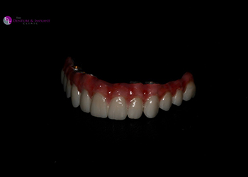 Same Day Teeth Images 009 of The Denture & Implant Clinic