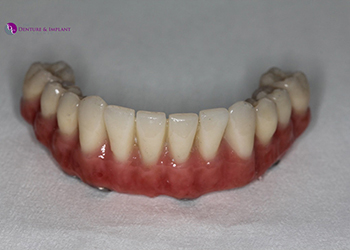 Same Day Teeth Images 013 of The Denture & Implant Clinic