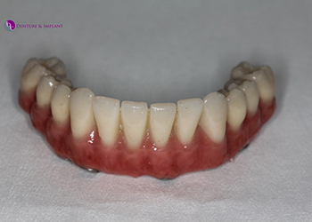 Same Day Teeth Images 015 of The Denture & Implant Clinic