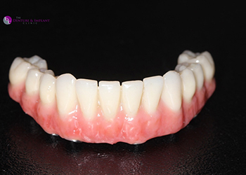 Same Day Teeth Images 020 of The Denture & Implant Clinic