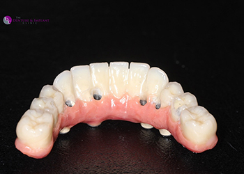 Same Day Teeth Images 021 of The Denture & Implant Clinic