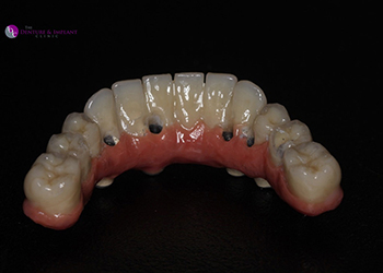 Same Day Teeth Images 023 of The Denture & Implant Clinic