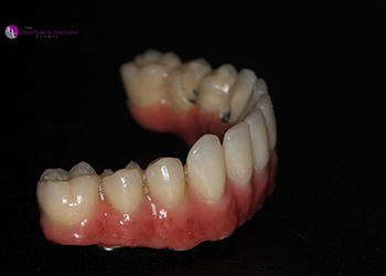 Same Day Teeth Images 028 of The Denture & Implant Clinic