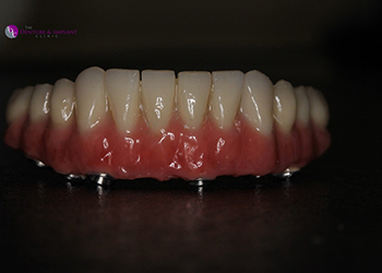 Same Day Teeth Images 029 of The Denture & Implant Clinic
