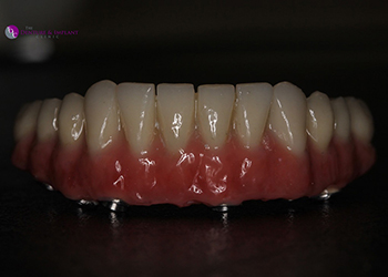 Same Day Teeth Images 030 of The Denture & Implant Clinic