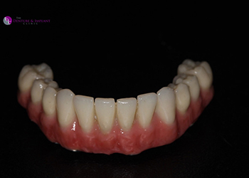 Same Day Teeth Images 031 of The Denture & Implant Clinic