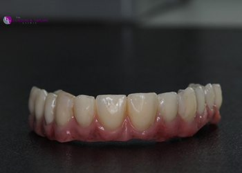 Same Day Teeth Images 036 of The Denture & Implant Clinic