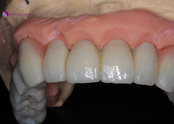 Same Day Teeth Images 046 of The Denture & Implant Clinic