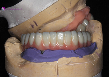 Same Day Teeth Images 047 of The Denture & Implant Clinic