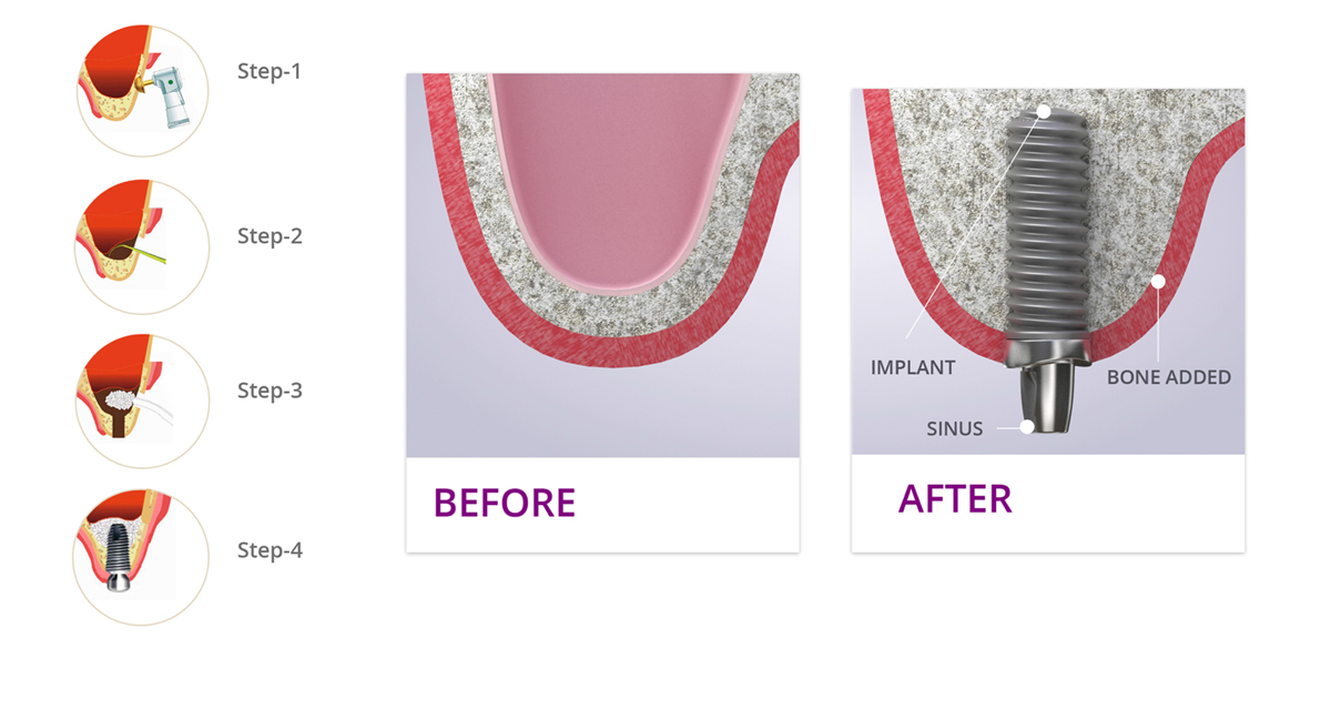 Dr Suril Amin, The Denture & Implant Clinic. Providing Sinus Lift Procedure