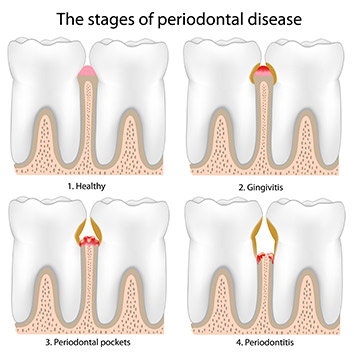 Dr Suril Amin, Denture & Implant Clinic, Stages of periodontal