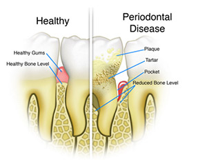 Dr Suril Amin, Denture & Implant Clinic, What is gum disease